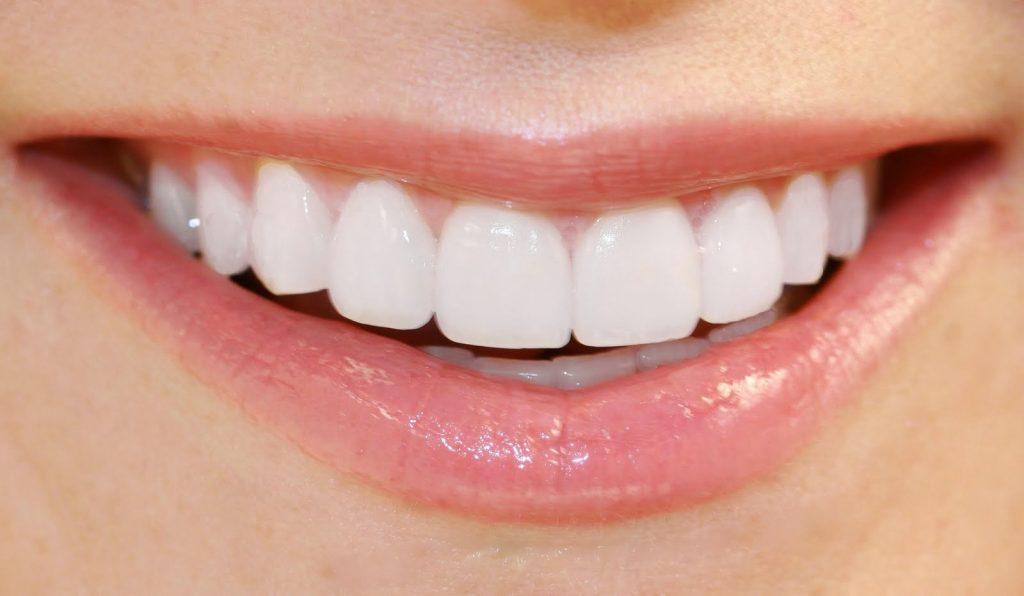 La odontología y el Verano sonrisa ideal 1024x596